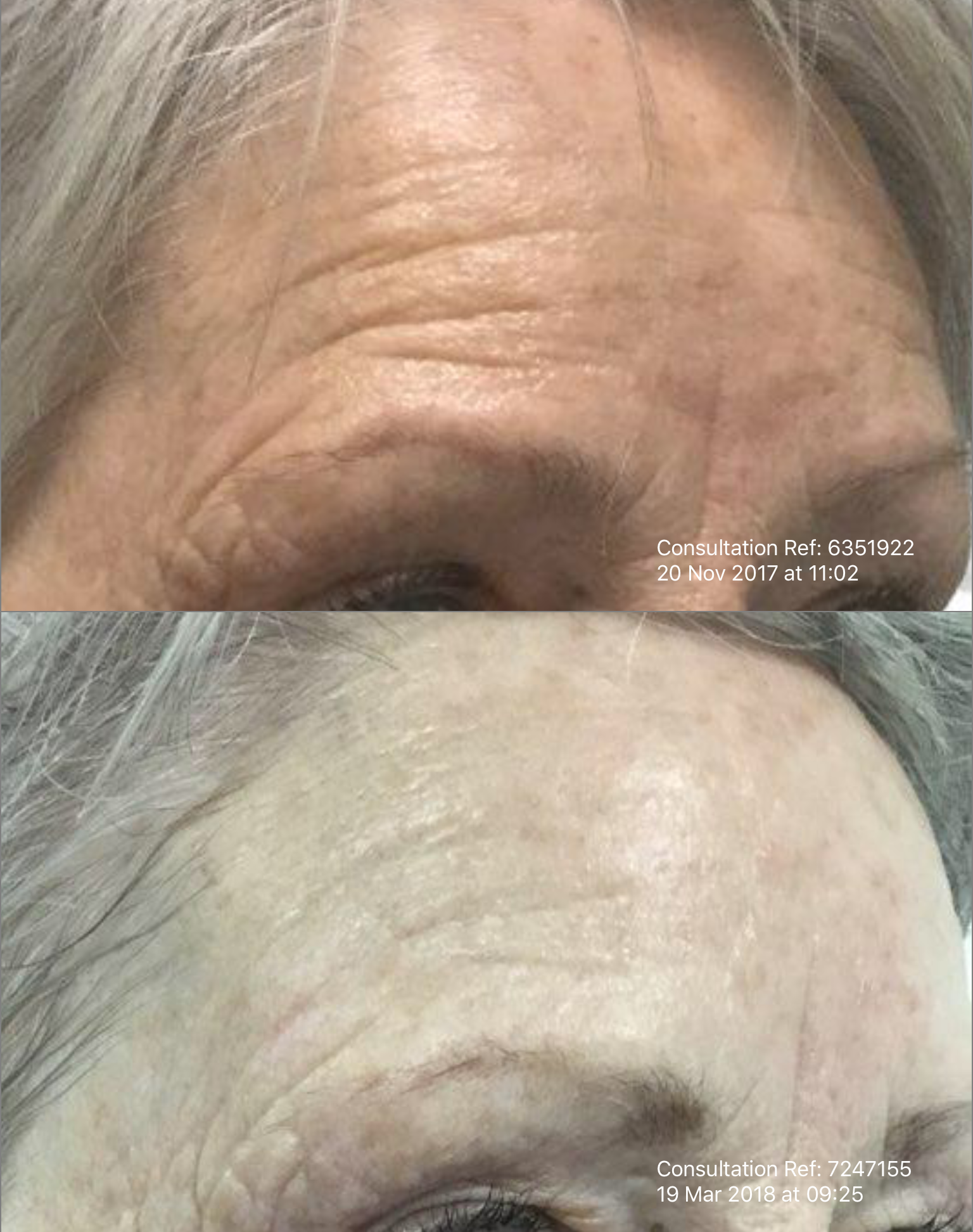 Microneedling Wrinkle Smoothing Treatment