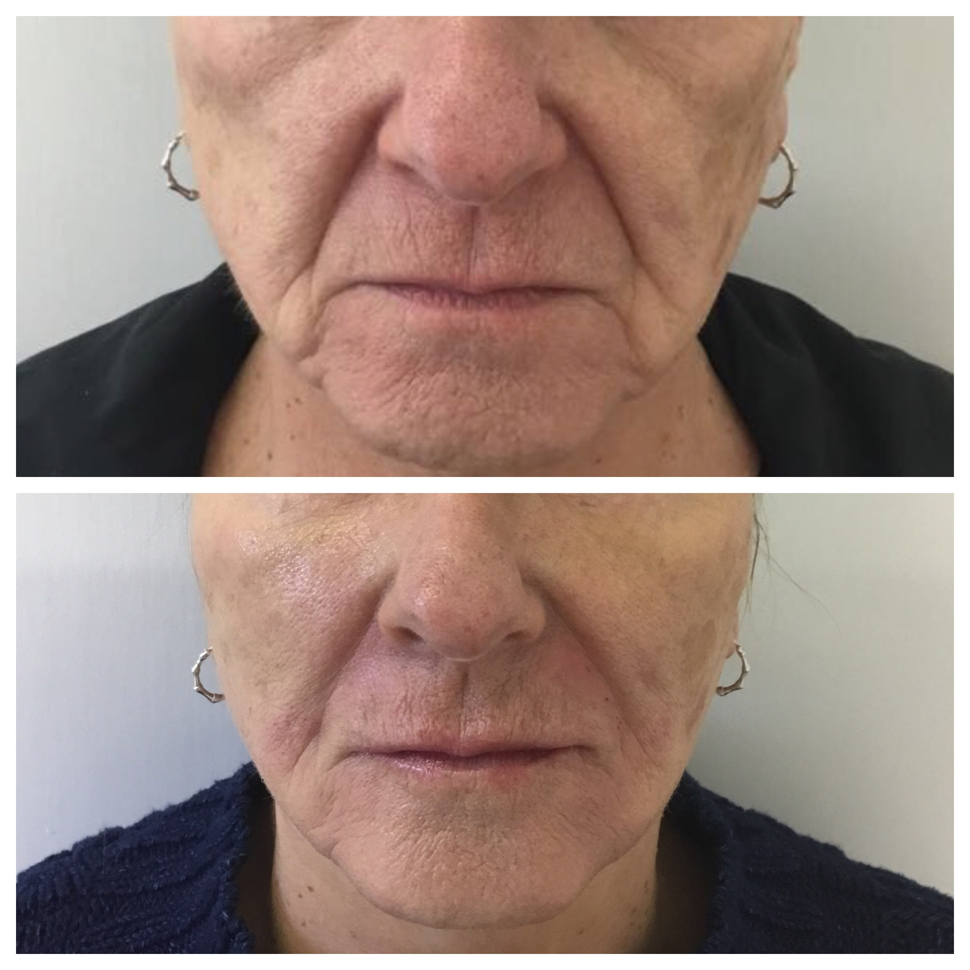Non-Surgical Facelift With Dermal Filler
