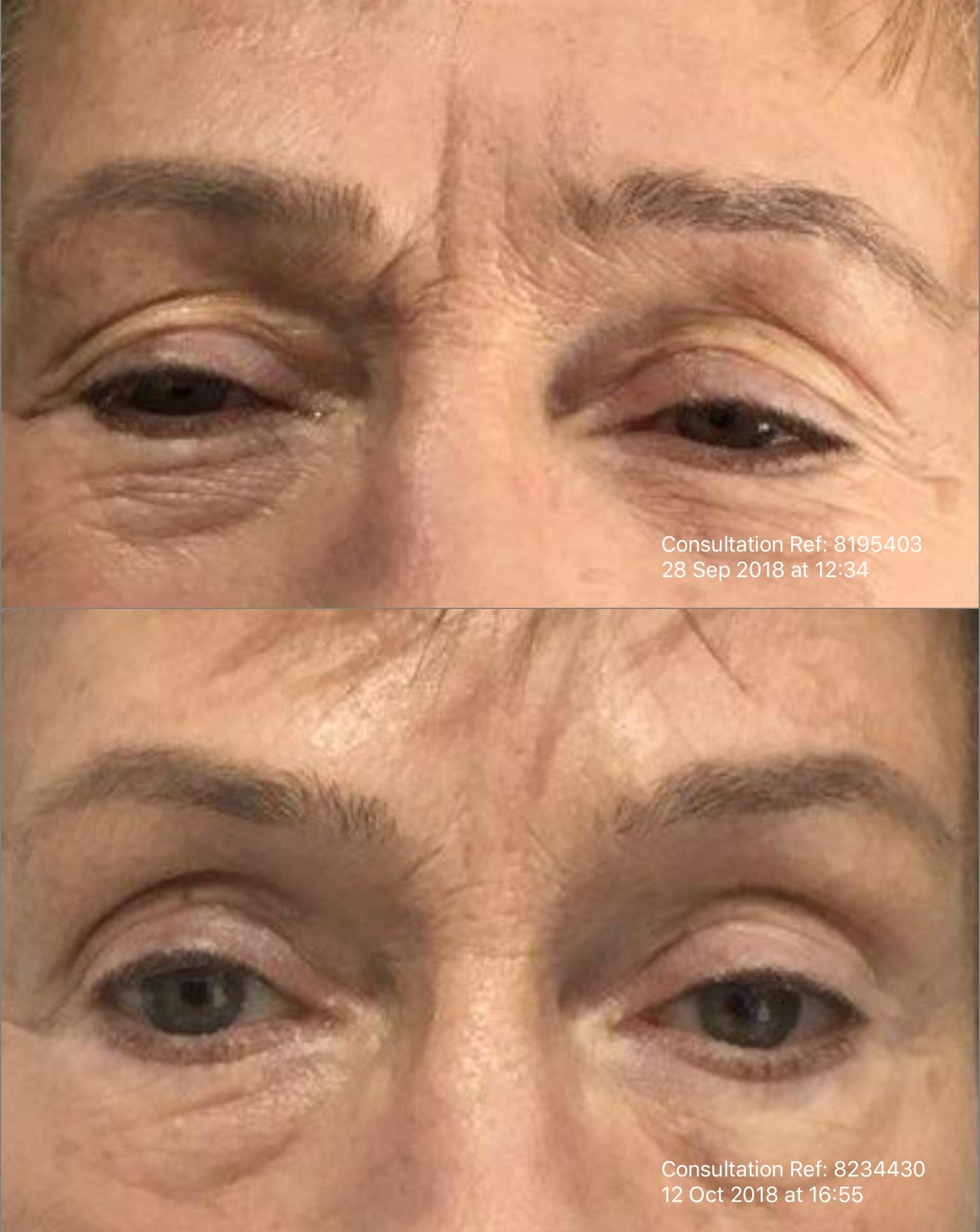 Botox and Dermal Filler