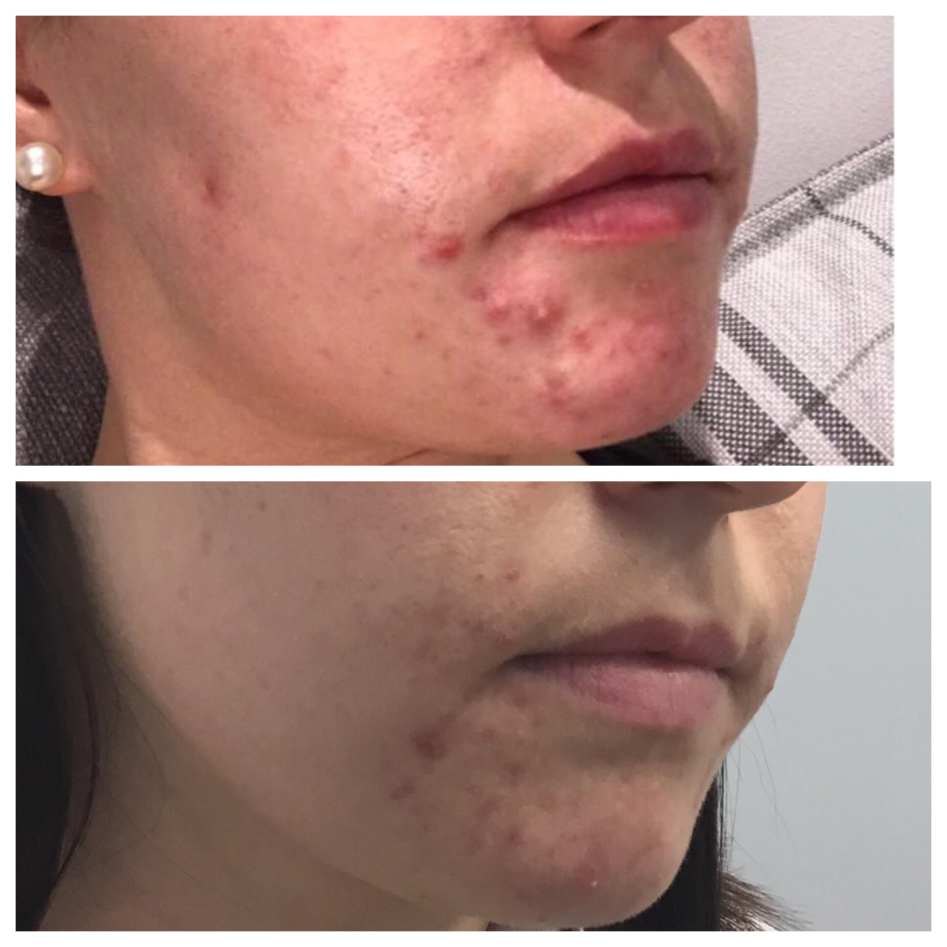 Acne Skincare Treatments