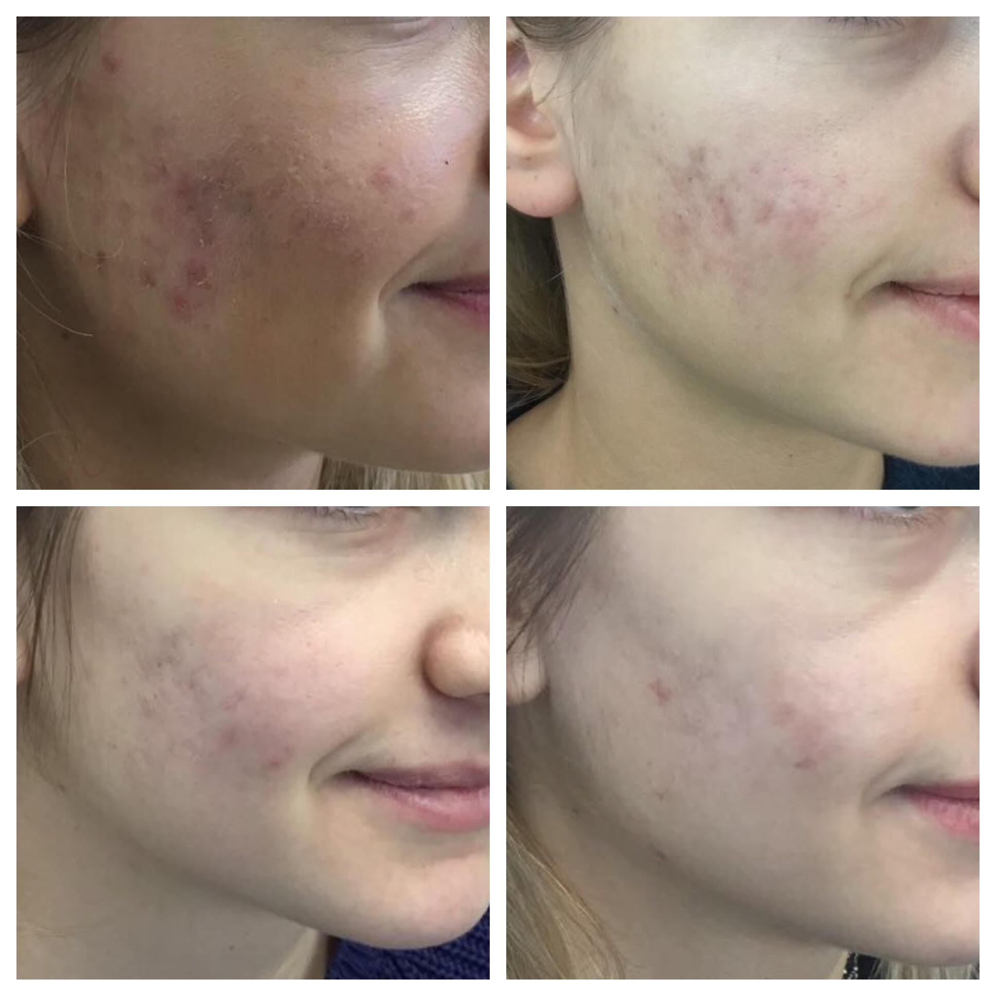 Acne Scar CelRenew Treatment