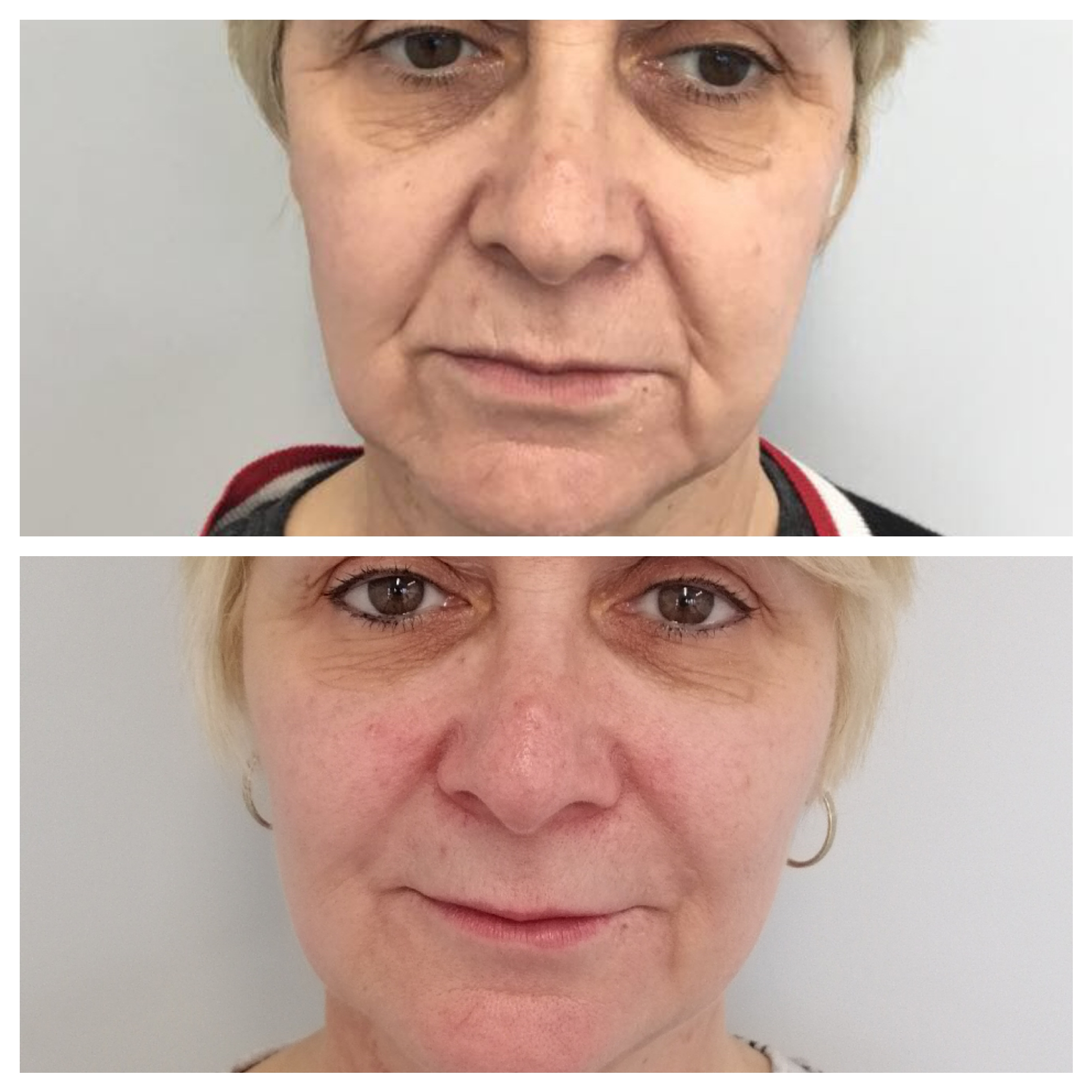 Natural results with dermal filler treatments in Oxford