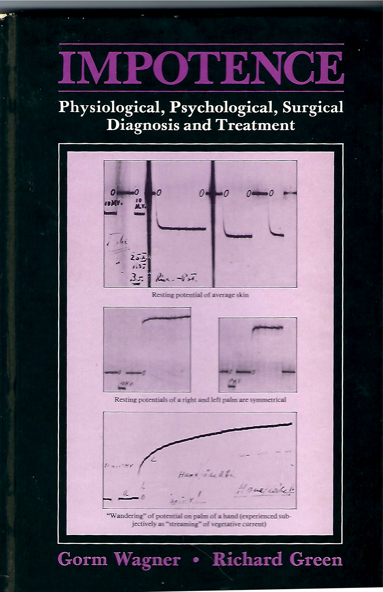 Impotence: Physiological, Psychological, Surgical Diagnosis and Treatment - Gorm Wagner & Richard Green1981