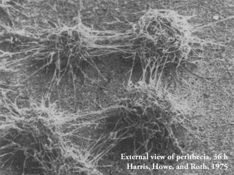 External view of perithecia, 36 h