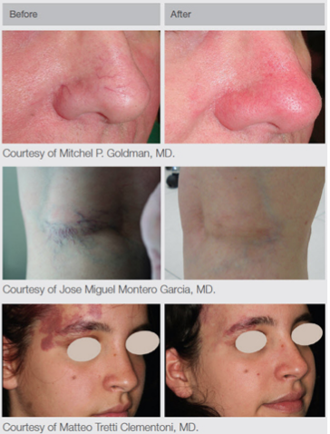 Before and after treatment with Multi-Spot Nd:YAG
