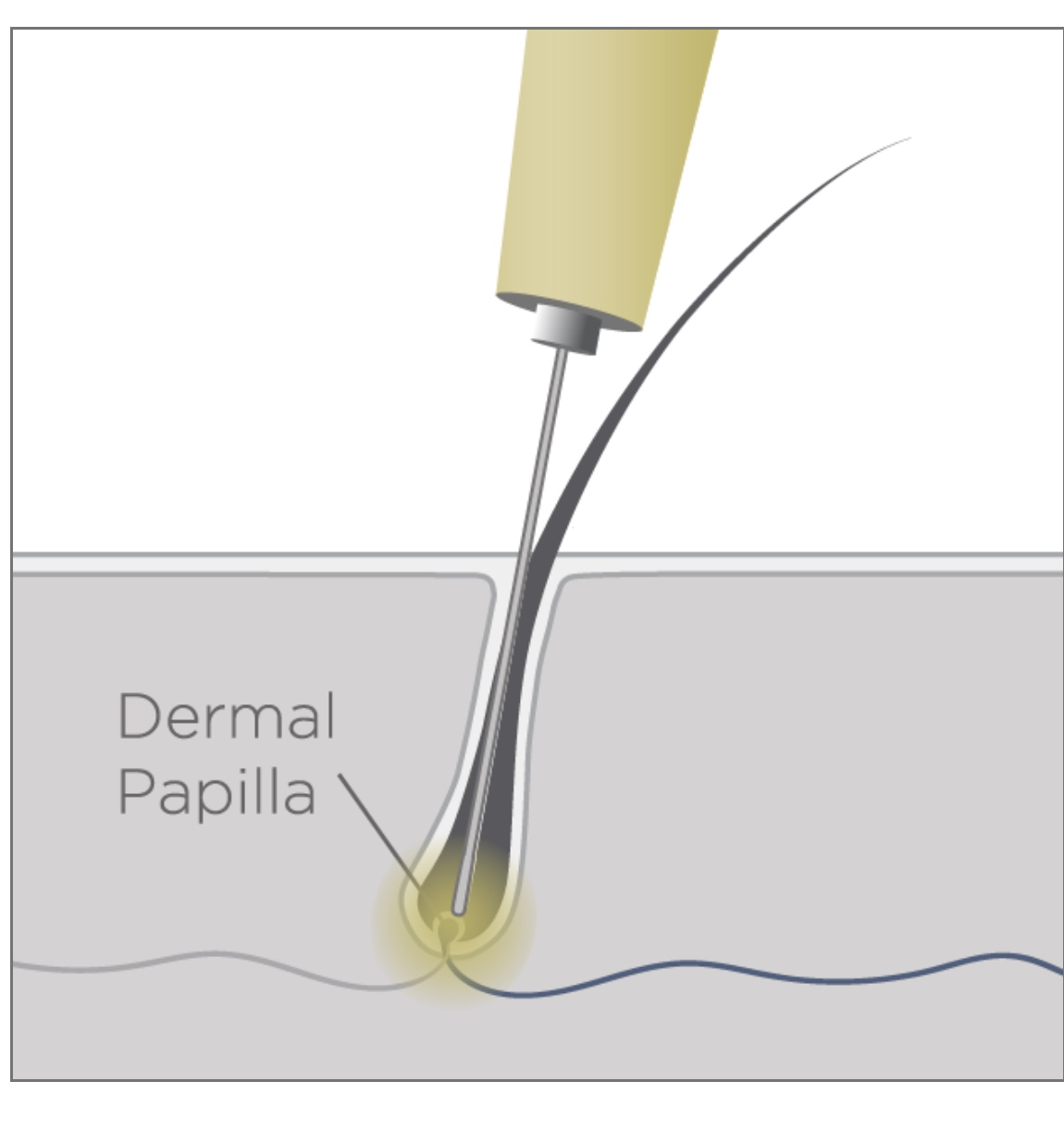 diagram of probe in follicle