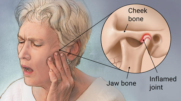 Tmj Neuromuscular Treatment In Santa Barbara Relief For Jaw Pain