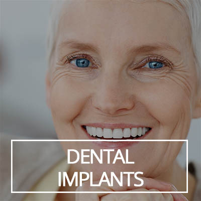 Dental Imlants