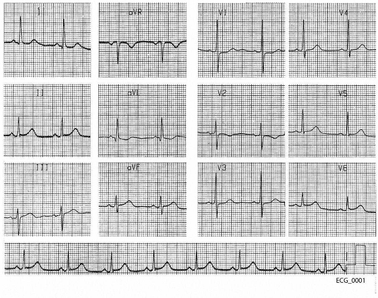 Figure 1. Forty five year old man with atypical chest pain