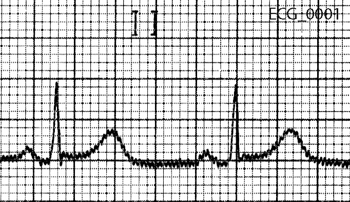 Figure 2. Lead II from forty five year old man with atypical chest pain