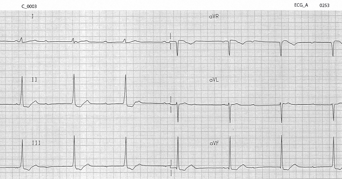 Figure 1. Initial ECG on arrival after an overdose of verapamil