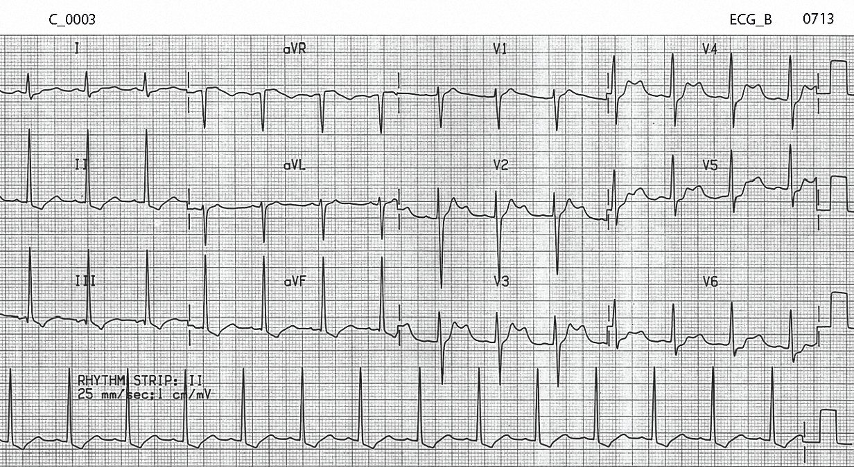 Figure 3. ECG of C_0003 after 5 hours of treatment in the Emergency Department.