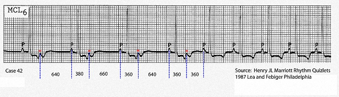 In his book Rhythm Quizlets Self Assessment (Lea and Febiger 1987) the late ECG expert Henry JL Marriott included an example of non conducted atrial bigeminy that terminates in sinus tachycardia. P: sinus P wave; Red asterick: non conducted atrial ectopic (NCAE); Vertical dotted lines mark P-NCAE and NCAE_P intervals. Note that the P-NCAE intervals are shorter than the NCAE_P intervals.