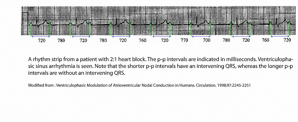 An example of second degree 2:1 AV block that shows that the P-P intervals encompassing a QRS complex are shorter than those without an intervening QRS complex.