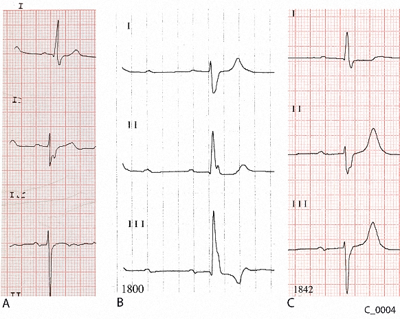 Figure 4. Comparison of leads I to III from the ECGs of Case C_0004. A: ECG taken 6 months before presentation. B: ECG taken at 1800 on presentation. C: ECG taken at 1842 on presentation