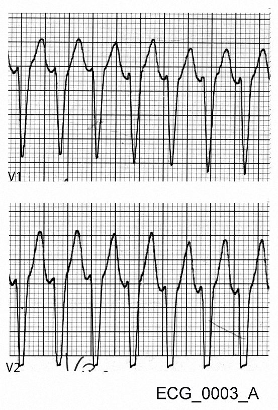 Magnified view of V1 and V2 from ECG_0003_A. The width of the R wave is about 0.04 seconds, and the interval from the start of the R wave and the tip of the S wave is 0.08 seconds.