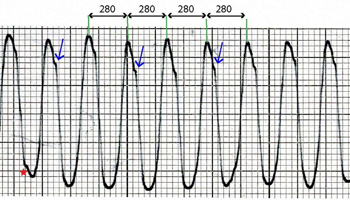Enlargement of upper rhythm strip from R_0005