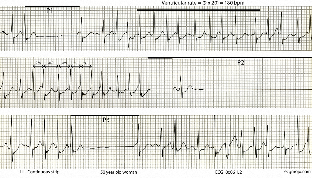 This shows intervals of atrial fibrillation, with a ventricular rate of about 180 beats per minute in the top strip. There are also three pauses (P1 to P3), with a single sinus beat in the second pause (P2). Some of the QRS complexes are preceded by an upward deflection that is suggestive of a delta wave (see the QRS complexes in the middle strip). This upward slope appearance is most marked when the ventricular rate increases to 200 beats per minute or more, as seen in the first half of the middle strip (the R-R intervals of some of the complexes in this strip are also shown). The upward slope is most likely due to aberrant ventricular conduction or merging of the ST-T segments with the QRS complexes. An accessory pathway is unlikely.