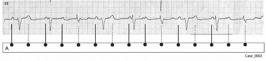 Figure 7. Laddergram4