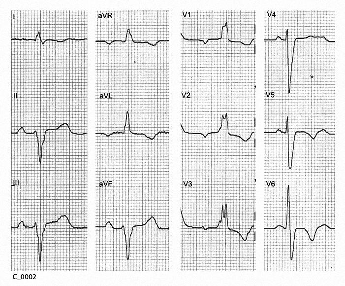 Figure 9. The underlying ventricular rhythm in C_0002.