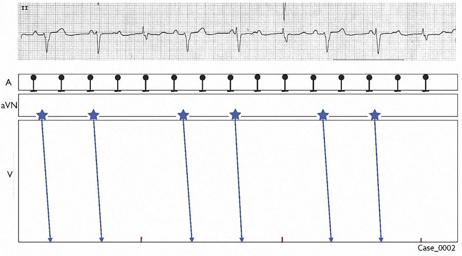 Figure 10. Laddergram 6