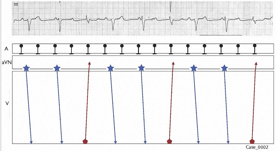 Figure 11. Laddergram 7
