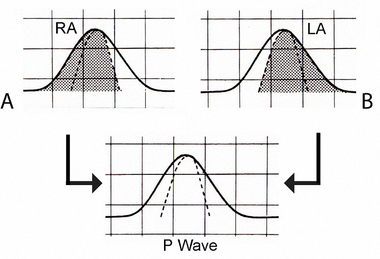 Figure 1. Contribution of right atrial (RA) depolarization and left atrial (LA) depolarization to the formation of the P wave in Lead II