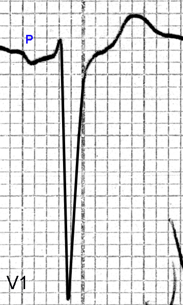 Figure 7. Normal P wave in Lead V1 with a small amplitude biphasic P wave (upward deflection followed by downward deflection), a PR interval of about 0.14 seconds, a QRS duration of 0.14 seconds, a deep rS complex (vertical amplitude of the S wave below the isoelectric line is about 20 mm) and a positive T wave
