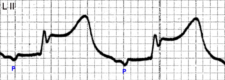 Figure 8. Lead II showing inverted P waves preceding the QRS complexes. The PR interval is about 0.20 seconds, the ST segments are elevated (nearly 3 mm above the isoelectric line) and the T waves are tall. These changes are consistent with an acute inferior STEMI and a junctional (nodal) tachycardia (the heart rate is about 100 beats per minute).
