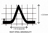 Figure 10. P wave changes of right atrial abnormality (p pulmonale) in Lead II