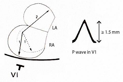 Figure 11. P wave changes of right atrial abnormality (p pulmonale) in Lead V1