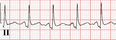 Figure 21. PR segment depression in Lead II in another patient with pericarditis