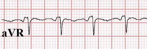 Figure 22. PR segment elevation in Lead aVR in the same patient in Figure 21.