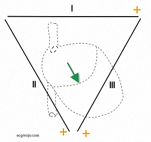 Figure_4. The individual dipole vectors shown in the previous diagram have been combined to form a single dipole vector (green arrow). This is in the middle of Einthoven's triangle bounded by Lead I,  Lead II and Lead III. The orange (+) is the positive pole of the Leads.