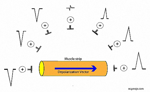 Figure_6. This figure shows the positive pole of leads that are located at different angles to the direction of a depolarization vector. The greatest deflection (positive or negative) is recorded when the depolarization vector is parallel to the axis of the lead. The size of the positive deflection decreases as the angle between the direction of thedepolarization vector and the axis of the lead is increased. When the angle is ninety degrees the deflection is zero or has equal (small) upward and downward deflections.