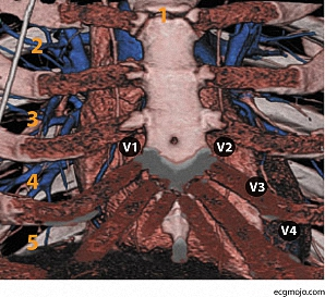 Figure_9. Position of Leads V1 to V4 are shown on a three dimensional CAT scan of the thorax. Abbreviations: 1. Angle of Louis; 2. Second intercostal space; 3. Third intercostal space; 4. Fourth intercostal space; 5. Fifth intercostal space.