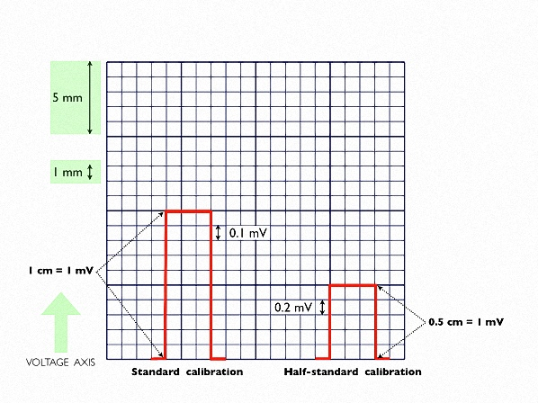 Figure_3. Calibration of the vertical axis of ECG paper. Standard calibration and half calibration are shown
