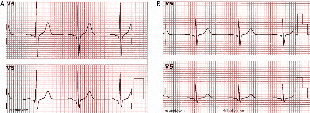 Figure_4. Comparison of the size of the cardiac complexes recorded at standard calibration (A) and at half calibration (B) in the same person.
