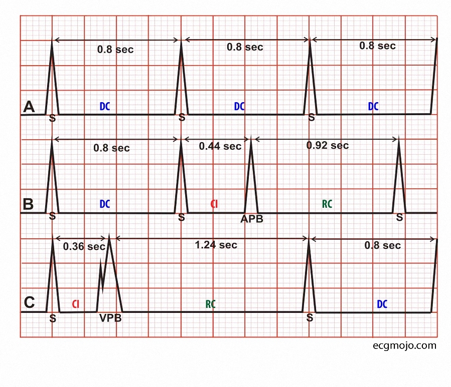 Figure_2. Ectopic beats and their effects on the cardiac cycle. Abbreviations: APB: Atrial premature beat; VPB: Ventricular premature beat; DC: Dominant cycle; CI: Coupling interval; RC: Return cycle