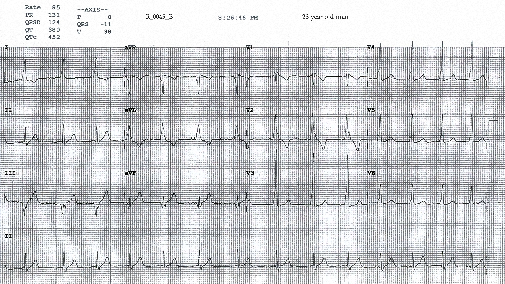 Figure 3. ECG taken at 2026. The heart rate is 85 beats per minute, the ECG features of VPE persist (although the QRS complexes in the inferior leads are narrower), and sinus arrhythmia is seen in the rhythm strip.