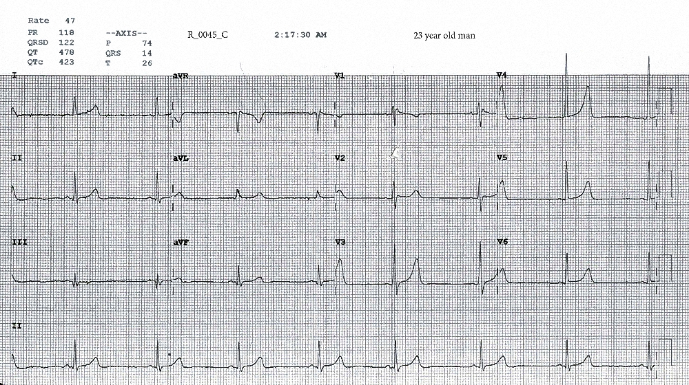 Figure 4. ECG taken at 0217