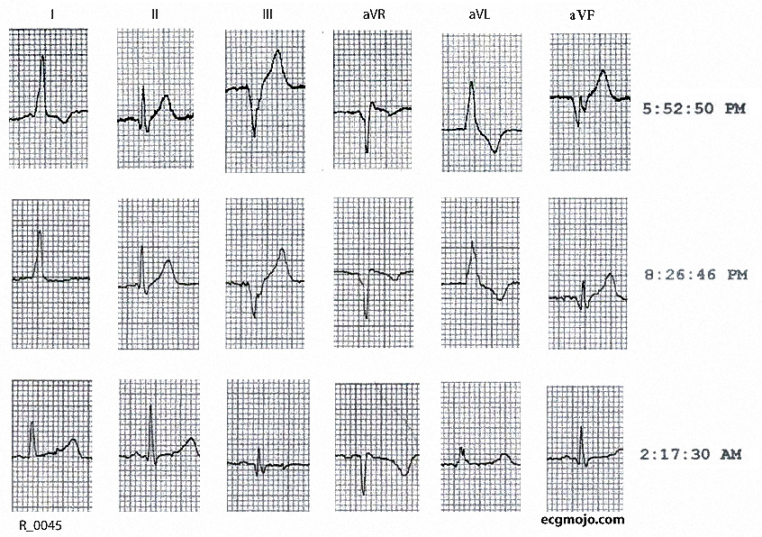 Figure 5. Changes in the frontal leads as the heart rate from 111 beats per minute at 1752 hours to 47 beats per minute at 0217 hours