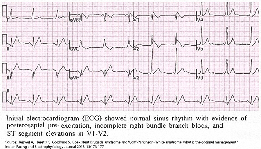 Figure 7. An ECG from a patient with the Brugada syndrome and PES