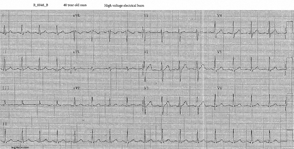 Figure 5. Electrocardiograph of Case 3 (R_0046_B) taken in the ED