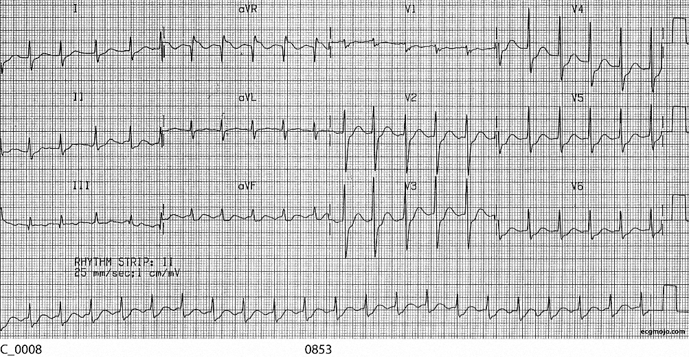 Figure 5. The ventricular rate is about 136 bpm, and the rhythm is regular. There is a incomplete right bundle branch block, and widespread J point depression with up-sloping ST depression. There is ST elevationin Lead aVR. Atrial flutter waves that vary in amplitude are seen in Lead II and Lead aVF