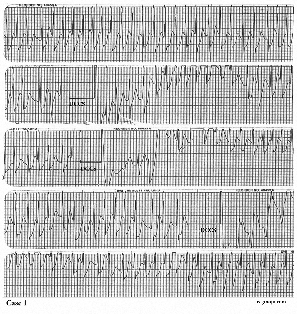 Figure 9. Sequential rhythms strips showing atrial fibrillation with a very rapid ventricular rate that persists despite three synchronised cardioversions (DCCS).