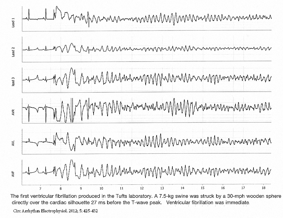 Figure 10. Experimental commotio cordis