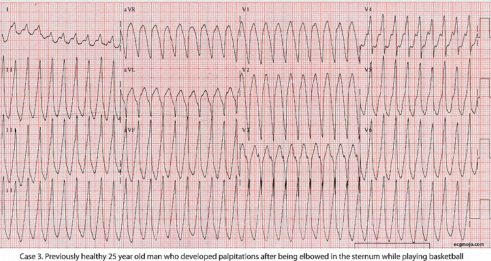 Figure 11. There is a regular BCT with a ventricular rate of about 250 bpm. Theinitial diagnosis is ventricular tachycardia, but the morphology of the complexes is suggestive of a pre-excited supraventricular tachycardia.