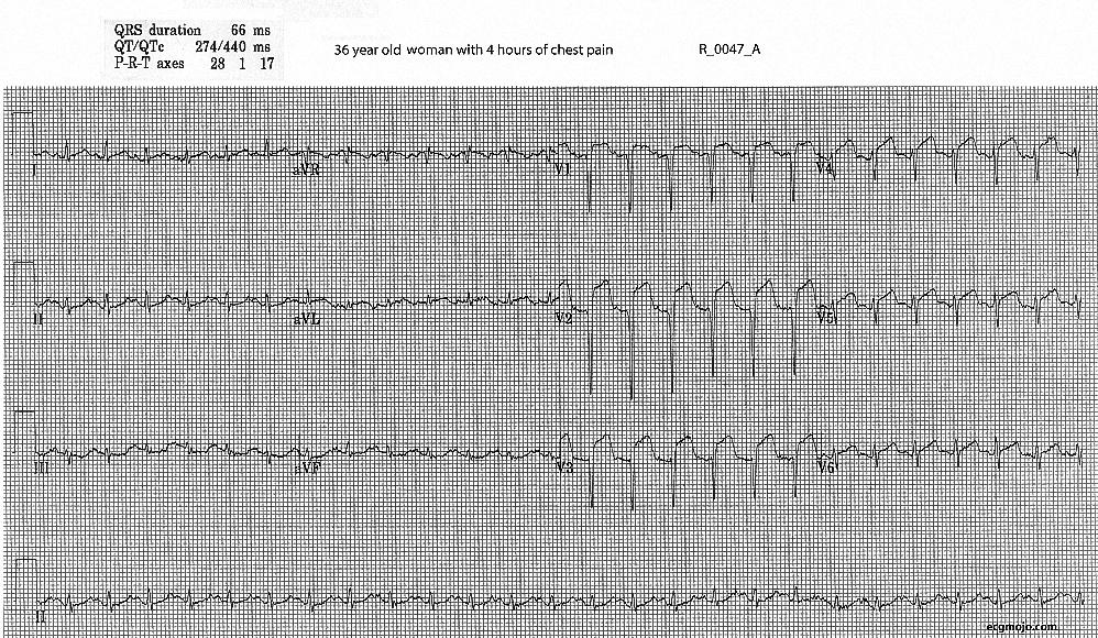 Figure 2. Initial ECG