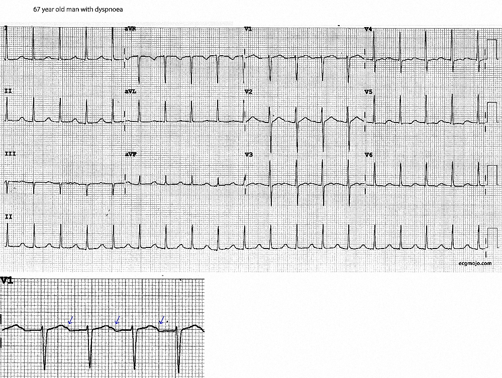 Figure 4. Sinus tachycardia with the P waves partially hidden in the T wave